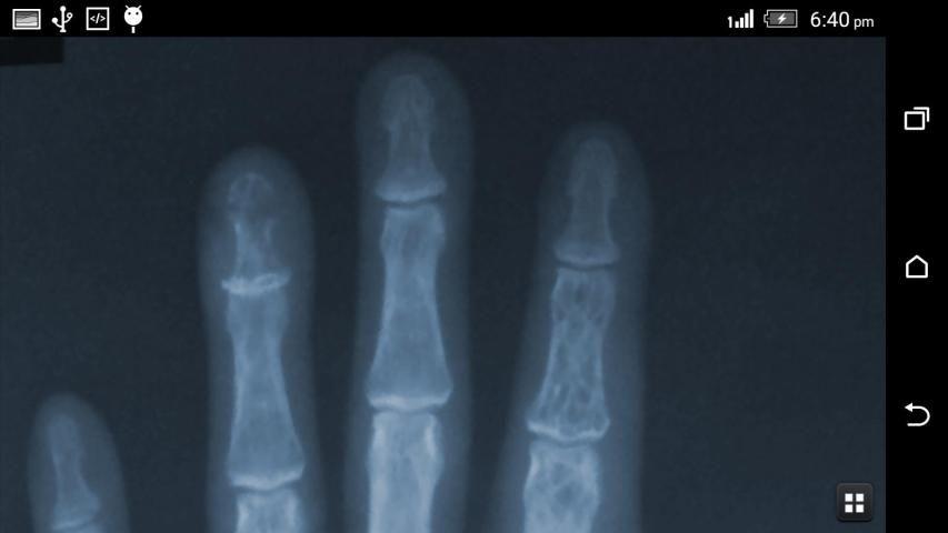 X-ray Scanner Prank 1 تصوير الشاشة